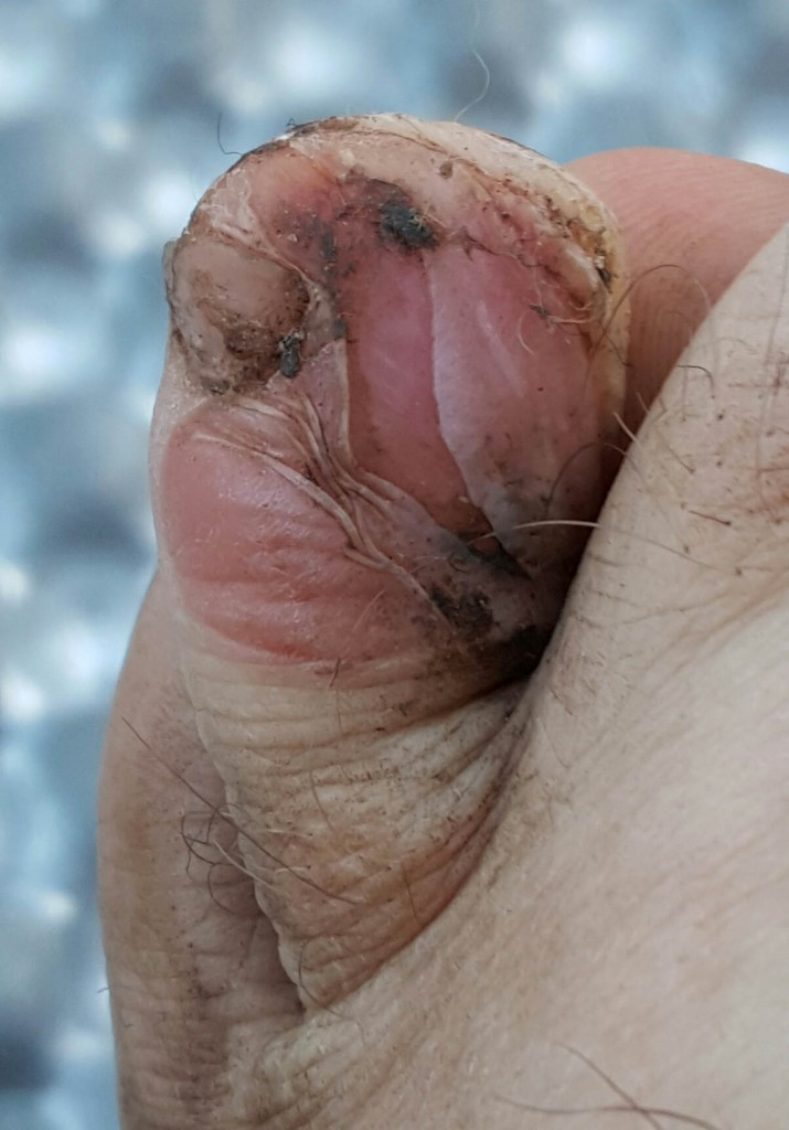 cropped toe blister